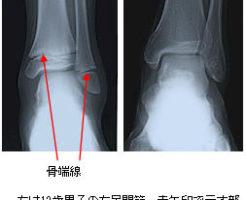 X線の骨端線